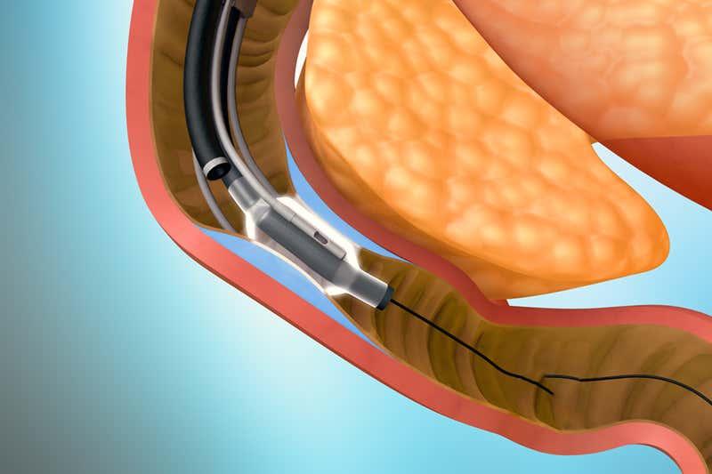 nanotehnologie pierdere în greutate